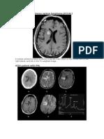 Primary Central Nervous System Lymphoma