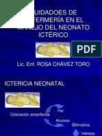 3ictericia