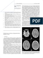 Calcificaciones Cerebrales e Hipotiroidismo