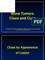 Bone Tumor - Radiology