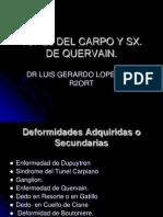 Tunel Del Carpo y Quervain