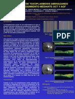 Reactivacion de Toxoplasmosis