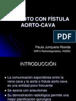 # AAA CON FÍSTULA AORTO-CAVA
