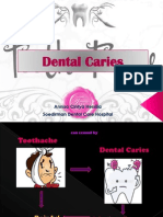 Dental Caries