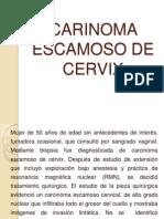 Carinoma Escamoso de Cervix