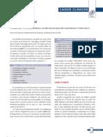 Cefalea occipital.pdf