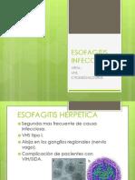 ESOFAGITIS INFECCIOSA