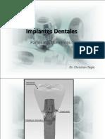 4) Implantes Dentales Partes y Aditamentos I