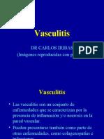 Vasculitis- Dr Iribas