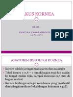 Power Point Ulkus Kornea