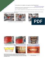 Enfilado dentario de prótesis de completa con esquema oclusal lingualizado
