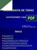 RADIOGRAFÍA DE TÓRAX. CAVITACIONES Y QUISTES
