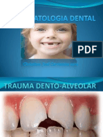 Trauma Alveolo Dental