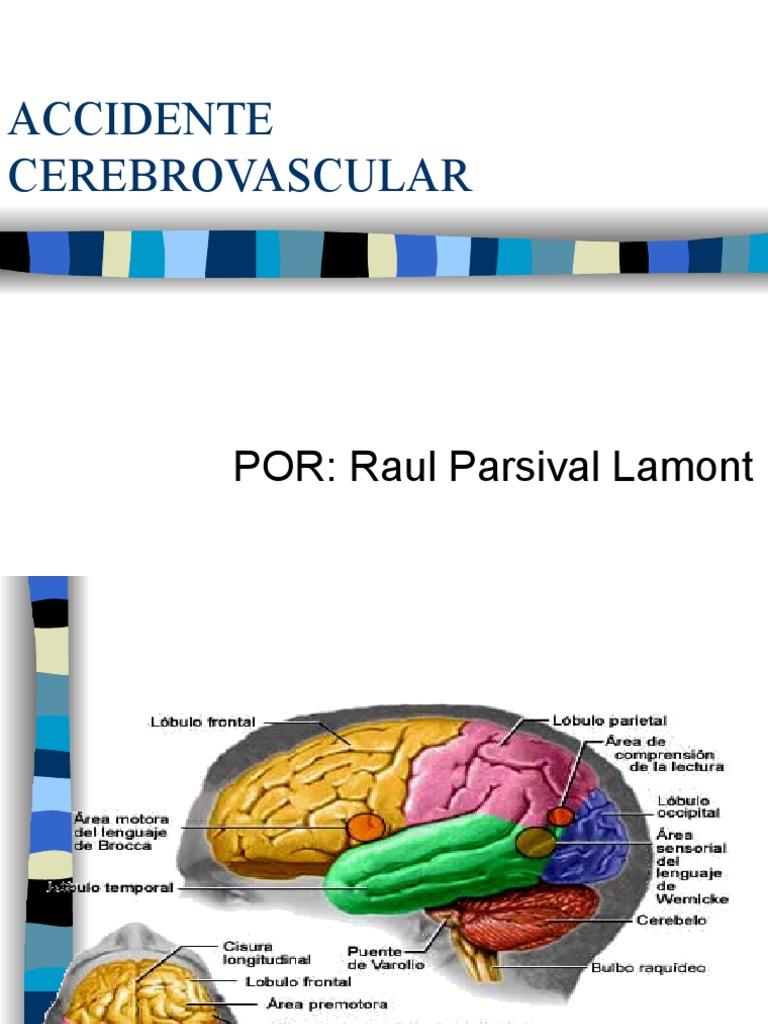 16179935 Accidente Cerebrovascular