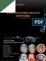 OTRAS INFECCIONES VIRALES E HIPERTERMIA