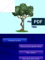 fracturasdetibia-110421114736-phpapp02