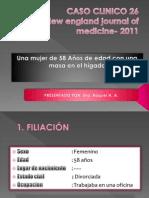 CASO CLINIC 2011 -Carcinoma Neuroendocrino Pobremente Diferenciado
