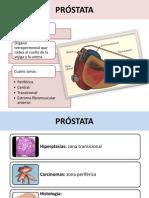 _PRÓSTATA