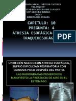 ATRESIA ESOFÁGICA-fistula traqueoesofágica