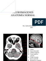 Neuro Imagenes Normal
