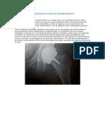 Artroplastia Total de Recubrimiento