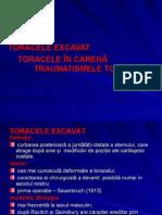 TORACELE-PPT
