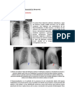Ejercicio de Diagnóstico Diferencial N°12 (R)