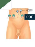 Infografías de Cistectomía