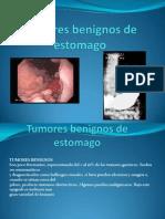 Tumores Benignos de Estomago ,Ender