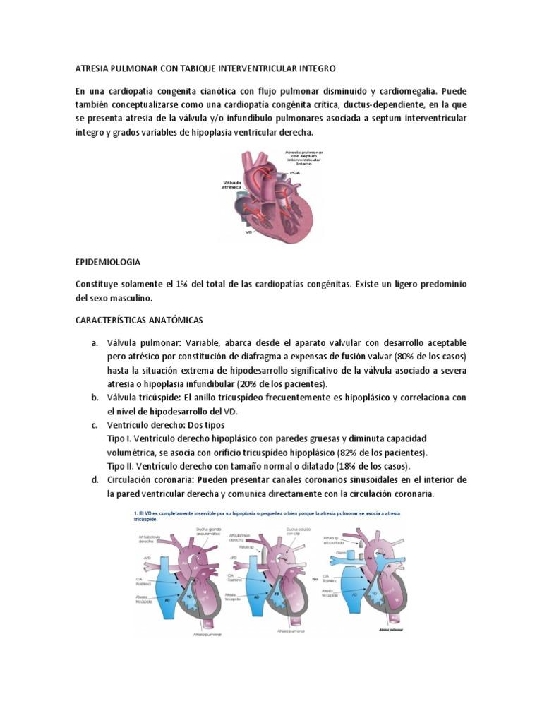 Atresia Pulmonar Con Tabique Interventricular Integro