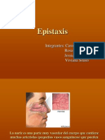 Epistaxis Us