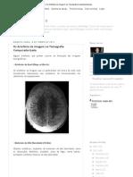 Os Artefatos de Imagem Na Tomografia Computadorizada