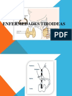 Enfermedades Tiroideas Power