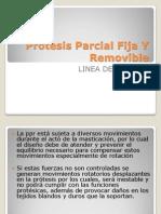 Copia de Expo de Protesis Parcial Fija Y Removible