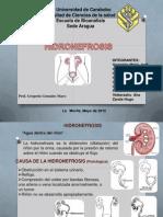 hidronefrosis presentacion