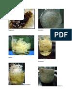 Bio 12 lab Algae pictures