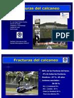 FxCalcaneoDrMontero09