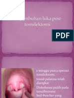 Presentation Orofaring dan diet Post Tonsillectomy