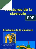 02-Clavicule+Fract-Luxat