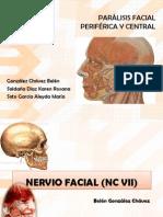 Parlisis Facial