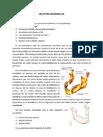 3. Fractura Mandibular