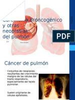 Carcinoma broncogénico