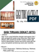 Gigi Tiruan Cekat