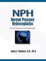 Normal Pressure Hydrocephalus