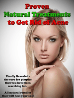 Proven Natural Treatments to Get Rid of Acne