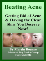 Beating Acne