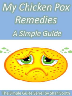 My Chicken Pox Remedies