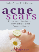 Acne Scars: Easy and Natural Remedies and Precautions