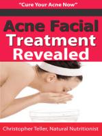 Acne Facial Treatment Revealed