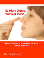 No More Warts, Moles or Acne